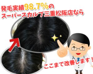伊勢・松阪の薄毛治療なら発毛実績98.7%のスーパースカルプ