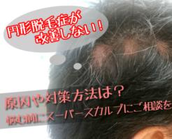 円形脱毛症の悩みはスーパースカルプへ