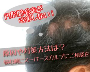 三重県松阪市で円形脱毛症にお悩みならスーパースカルプ三重松阪店へ