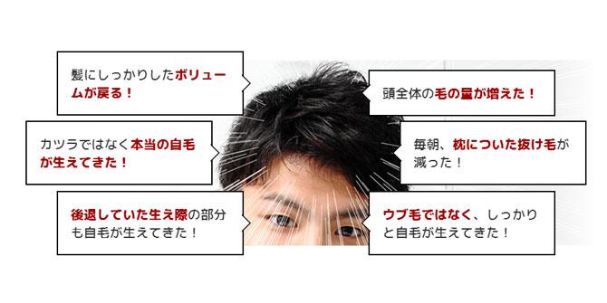 三重県で薄毛治療するならスーパースカルプ