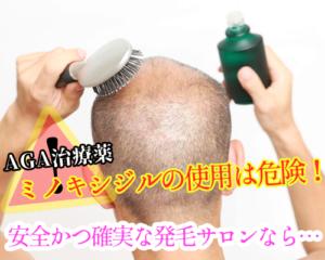 松阪でミノキシジル等のAGA治療薬を使わずに発毛が可能です!