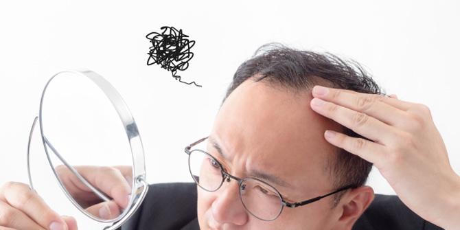 男性の髪の悩み