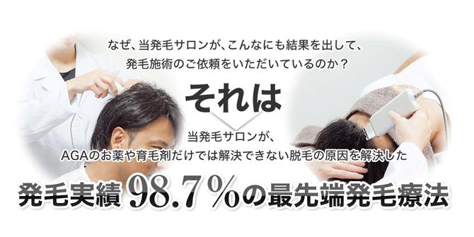 スーパースカルプ松阪店 円形脱毛症